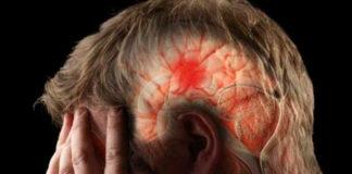 Provoca derrame cerebral perdida de 633 mil neuronas por minuto