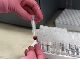 Encuentran posible cura contra el VIH