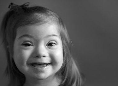 Encuentran relación genética entre síndrome de Down y leucemia