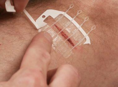 Nueva forma de cerrar heridas sin sutura