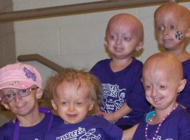 Progeria: el drama de niños con envejecimiento rápido