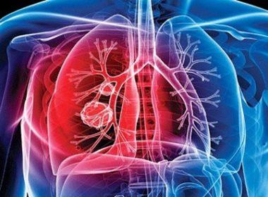Durante 2018 se registraron más de dos mil casos de tuberculosis en México: SSA