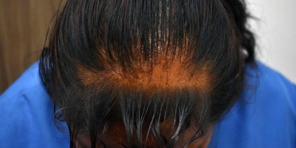 Detectan causas que provocan pérdida de cabello