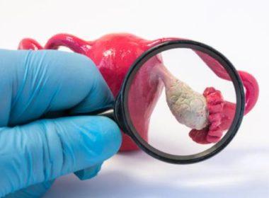 Síntomas que mujeres no deben ignorar del cáncer de ovario
