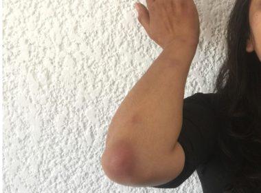 Periodistas, CIDH y CNDH repudian agresión a reportera por policías de Morelia