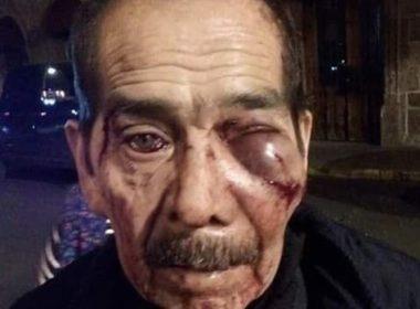 Persona de la tercera edad brutalmente golpeado