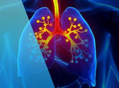 ¿Como detectar la Fibrosis quística